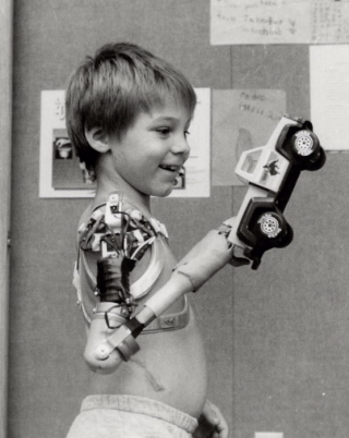 Photograph of boy, Scott Connor, smiling and holding a toy truck with his prosthetic arm